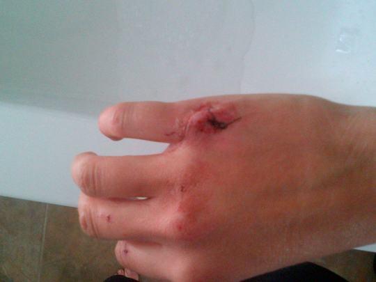stitches..